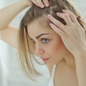 Dandruff Treatment- Adara